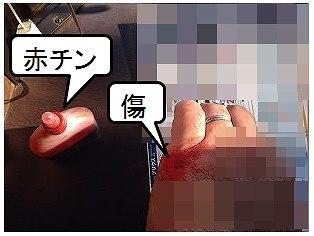 傷と赤チン.jpg