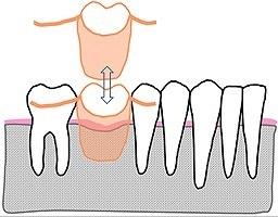 義歯.jpg